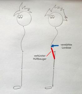 Ein verkürzter Hüftbeuger (v.a. M. psoas major) kann zu einer Verstärkung der Lordose im unteren Rücken führen